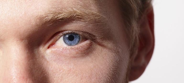 An Overview Of Avellino Corneal Dystrophy