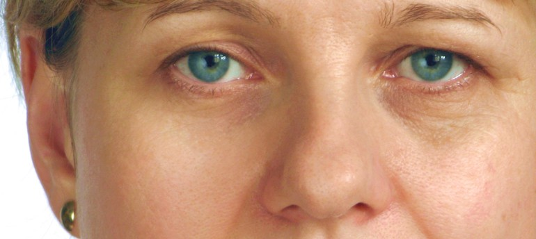 Ptosis: Causes, Risks And Treatment